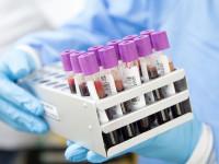Fiano Romano. Test sierologici dall'11 al 15 maggio 2020